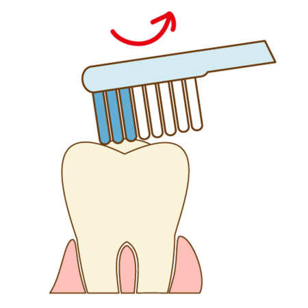teeth-cleaning009.png